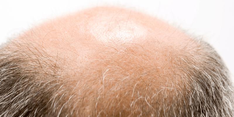 Caduta dei capelli cause, sintomi, rimedi e quando preoccuparsi