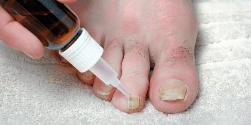 Micosi delle unghie: sintomi, cause, farmaci e rimedi naturali