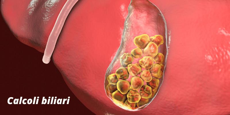 Coliche biliari: sintomi, cause, rimedi