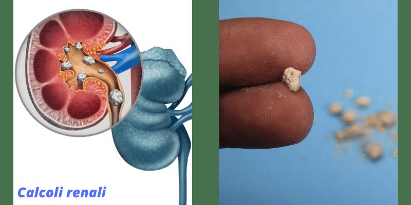 Coliche renali: sintomi, cause, rimedi