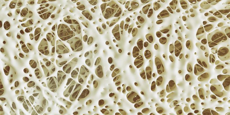 Sciatica SOS (PDF) Rimedi naturali e cura per sciatalgia