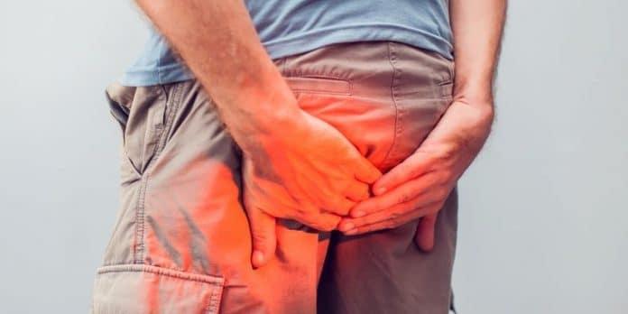 Gavocciolo emorroidario alterato: sintomi, cause e rimedi