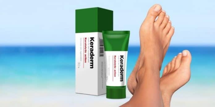 Keraderm crema funghi antimicotica contro la micosi di piedi e unghie