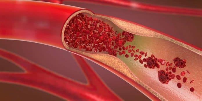 ossido nitrico ed erezione
