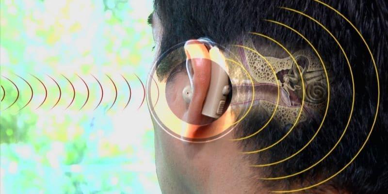 micro amplificatore acustico