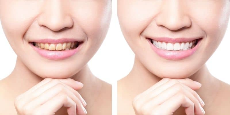 come avere denti più bianchi