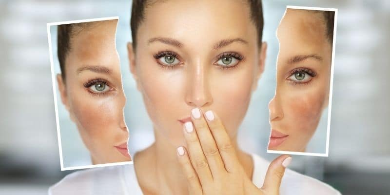 iperpigmentazione cutanea rimedi