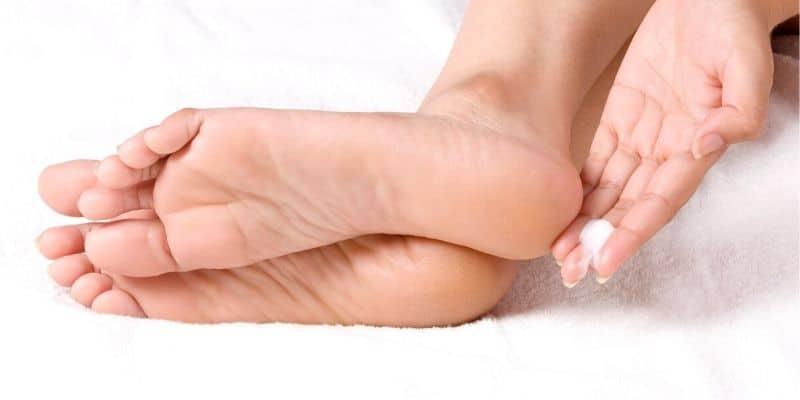 micosi piedi rimedi
