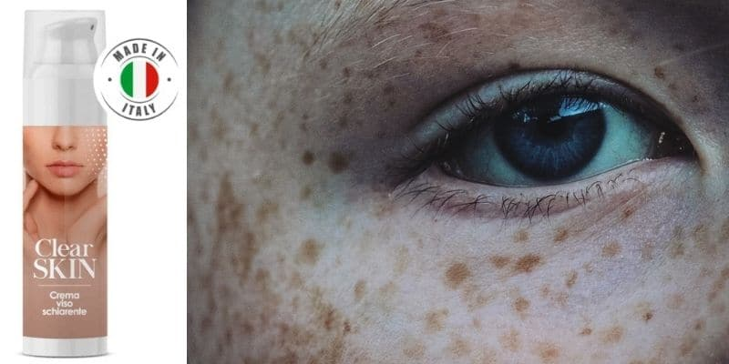 clear skin crema viso schiarente antimacchie