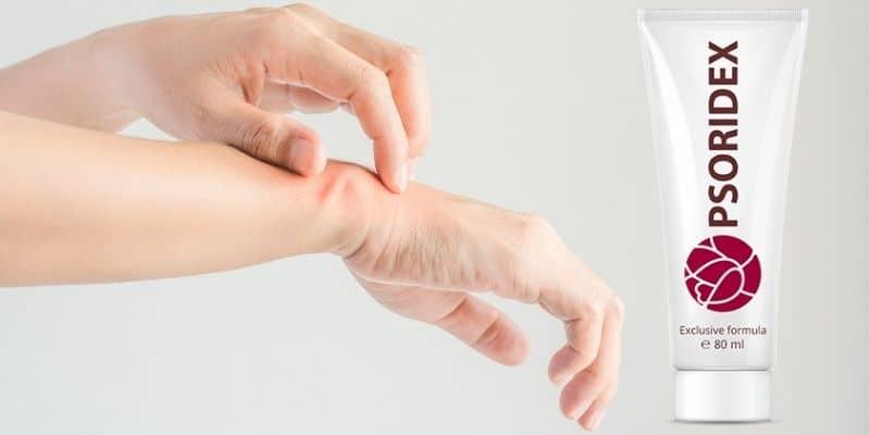 crema naturale per psoriasi